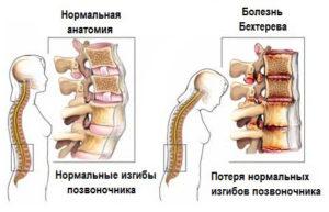 болезни бехтерева и нормальная анатомия