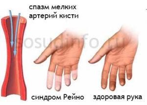 спазм мелких артерий кисти синдром рейно