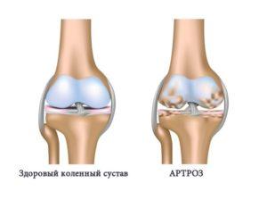 артроз и здоровый коленный сустав