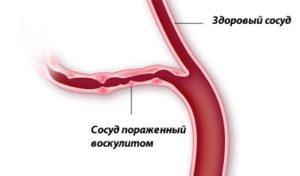 Сосуд пораженный воскулитом