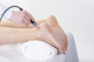 лазерная терапия на ступнях и ногах