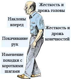 болезнь паркенсон