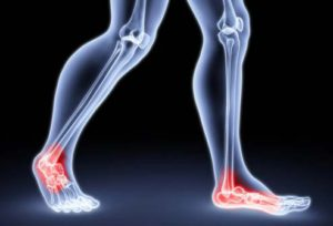 боли в лодыжках при ходьбе (1)