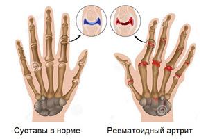 Артрит пальцев рук и нормальные суставы