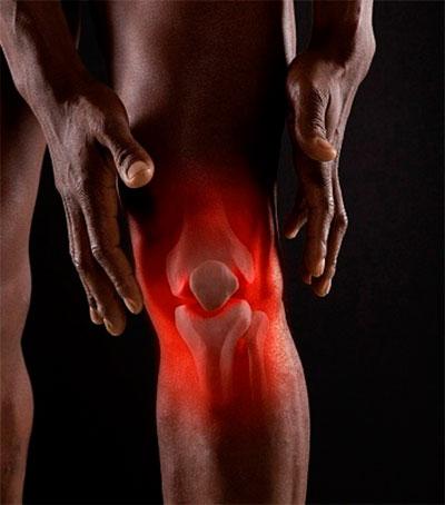 ревматология и боль в колене