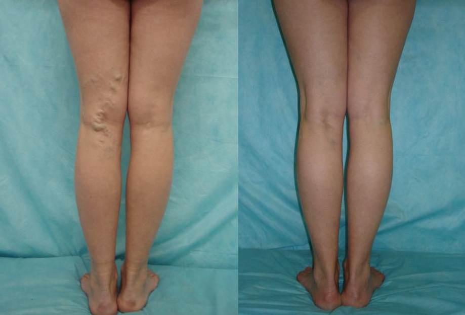 склеротерапия до/после процедуры