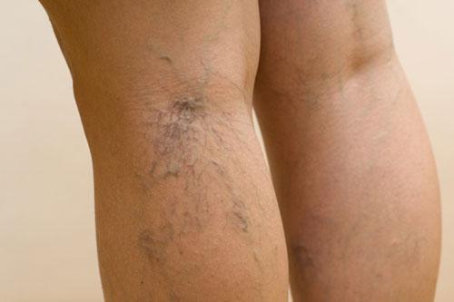сосудистые звездочки на задней поверхности голени