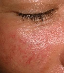 венозная сеточка на лице у пациента 2
