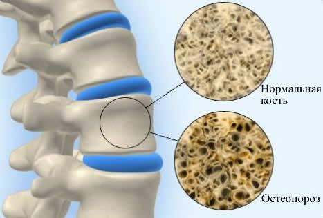 нормальный скелет и остеопороз