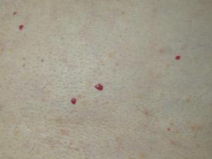 пятна на коже