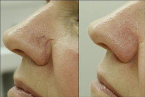 венозная сеточка на носу
