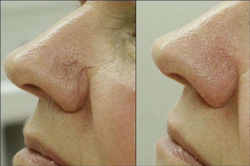 венозная сеточка на носу 4