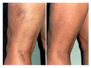 венозная сеточка на ноге и голени до/после