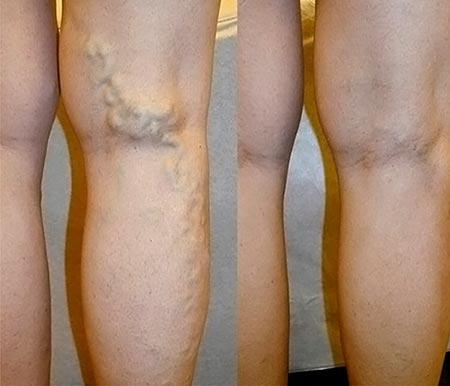 Варикоз до/после лечения