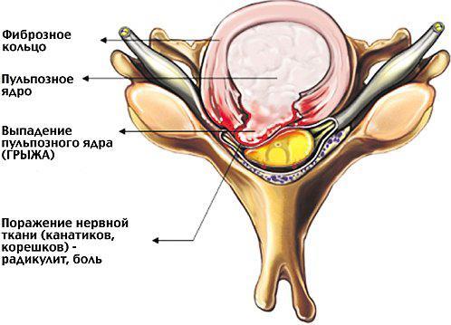 Выпадение пульпозного ядра (грыжа)
