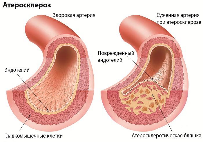 артосклеротическая бляшка