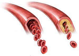 атеросклероз и нормальный сосуд