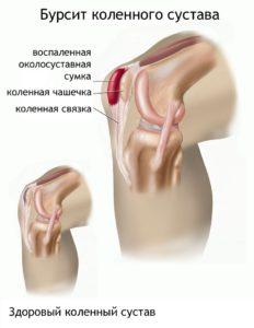 Бурсит коленного сустава (воспаленная околосуставная сумка)