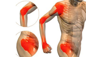 воспаление мышц, связок-