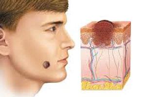невус на лице