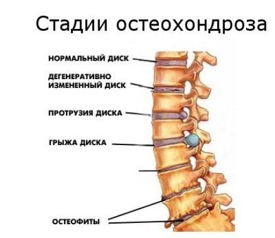 стадии остеохондрозз