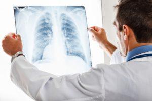 рентген лёгких