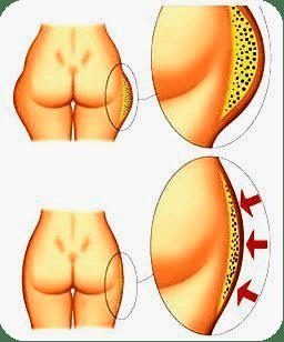 подкожный жир на бёдрах