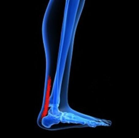 боли в сухожилиях ступни