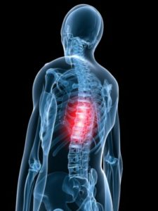 боли в спине позвоночнике,