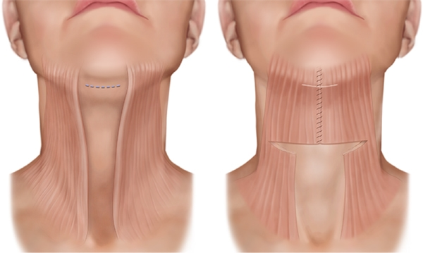 мышцы шеи горла