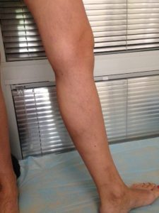 Лечение варикоза после(1)
