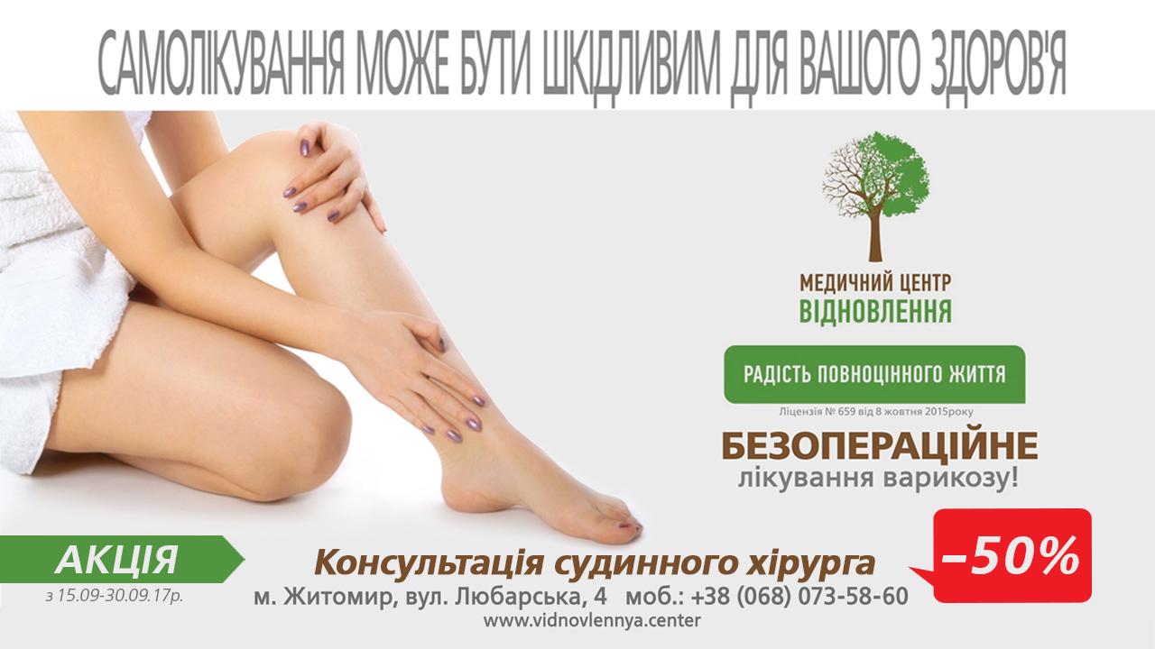 Акция при лечении варикоза -50%