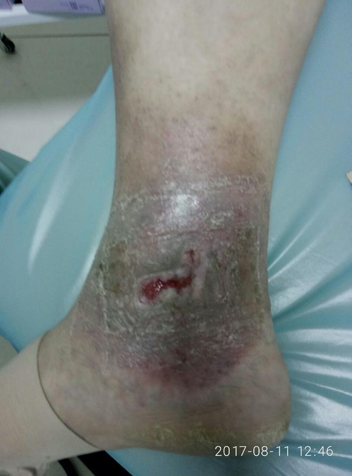рана после радиочастотной абляции Через 14 дней(3)