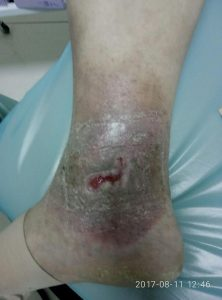 рана после радиочастотной абляции Через 14 дней