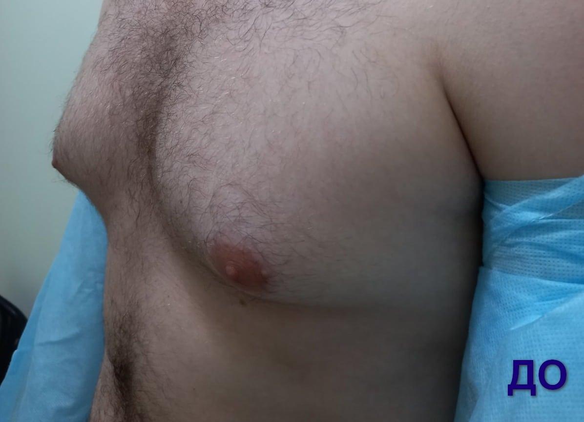 гінекомастія у чоловіків