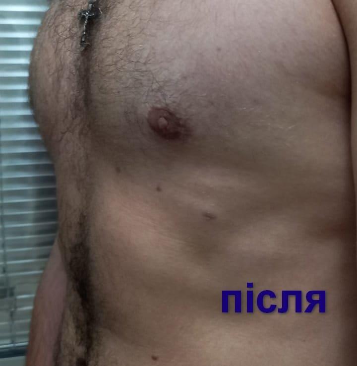 гінекомаастія