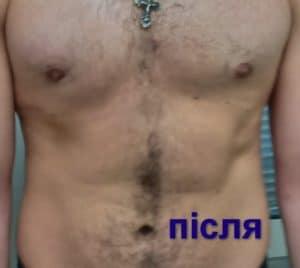 лікування гінекомастії
