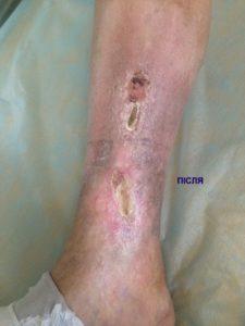 результат лікування трофічної рани