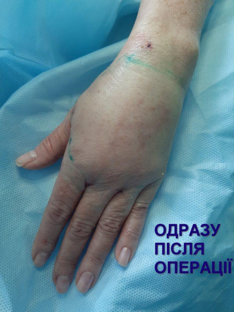 ліпофілінг кисті у медичному центрі Відновлення
